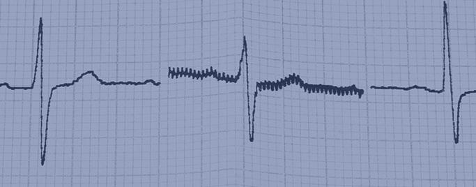 EKG - Terheléses EKG